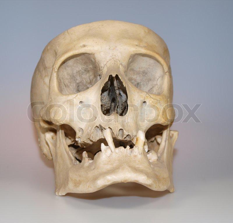 Echte menschliche Schädel wie Lehrmaterial verwendet   Stockfoto ...
