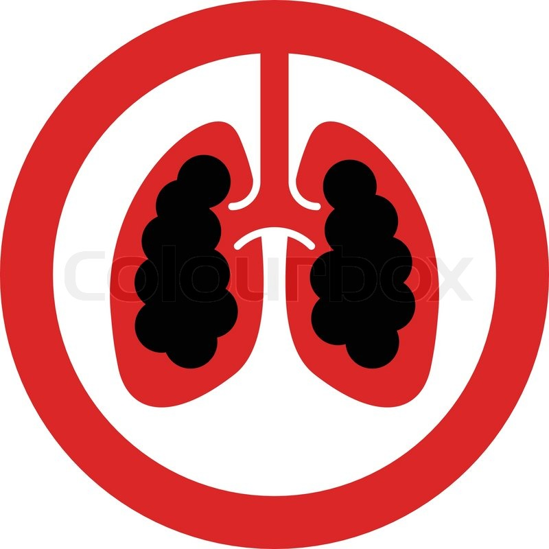 Diagram Of Lung Cancer Concept Stock Vector Manual Guide