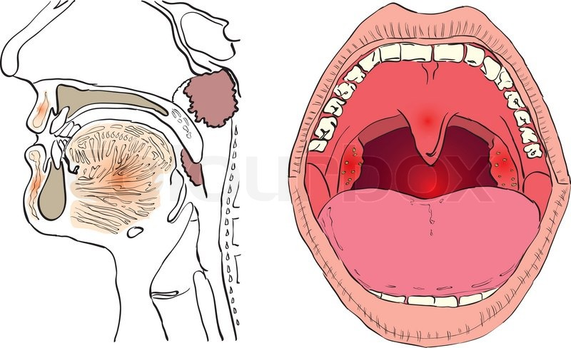 Vector illustration of a disease of the adenoids with the