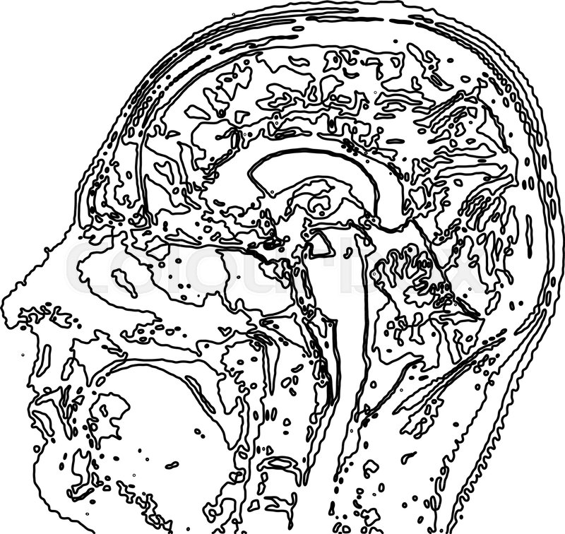 Topographic Map Mri Of The Human