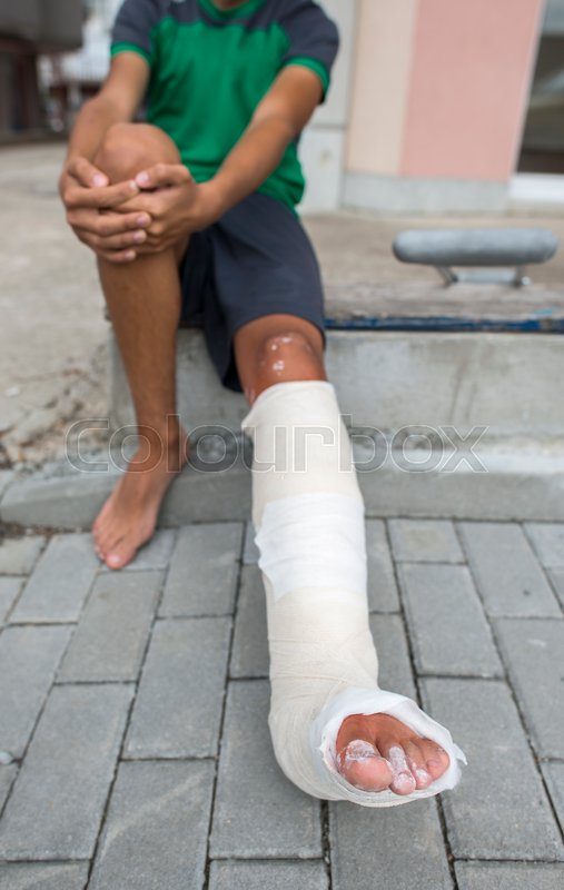 Boy Have His Leg Broken Gypsum Foot Stock Photo Colourbox
