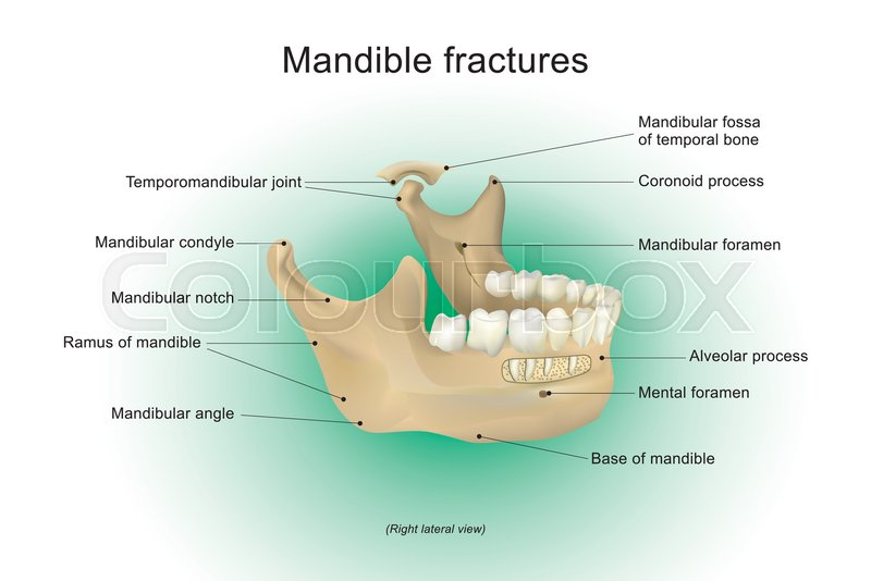 Anatomy Of Mandible Fractures Stock Vector Colourbox