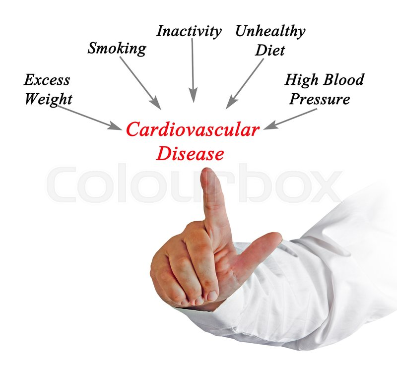 causes of cardiovascular disease Information on stress and its relationship to heart disease including the causes of stress, warning signs of stress, how to cope, reducing stressors, how to relax, and healthy eating to fight stress.