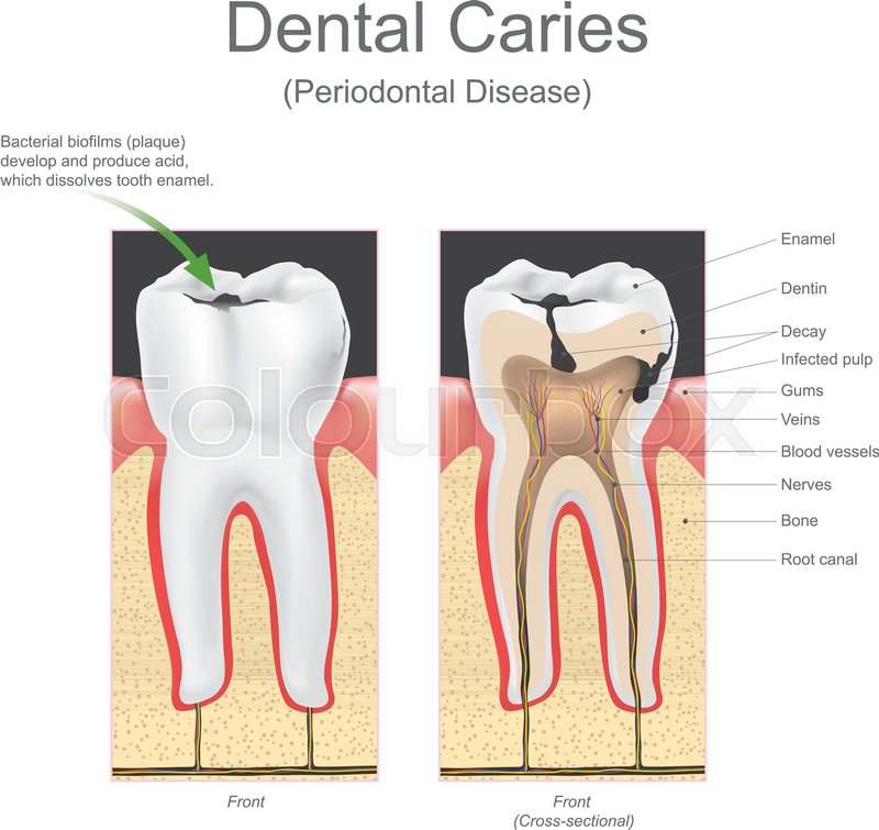 Dental implant is an artificial tooth root that is placed into your ...