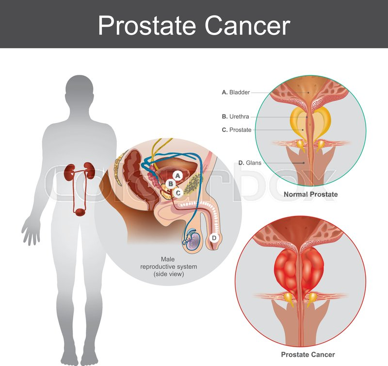 The Prostate Cancer Is The Most Common Cancer Among Men Not Skin