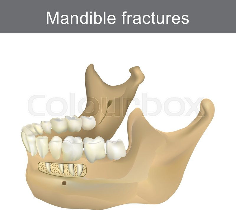 Mandible fractures is the largest, strongest and lowest bone in the ...