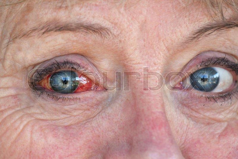 blodsprængt øje