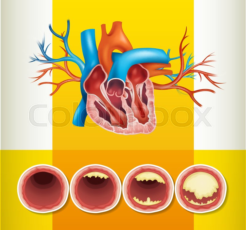 Heart Anatomy And Fat In Vein Illustration Stock Vector Colourbox