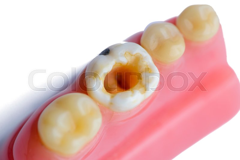 real decay molar teeth model stock photo colourbox