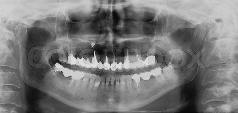 Jaw and facial surgery