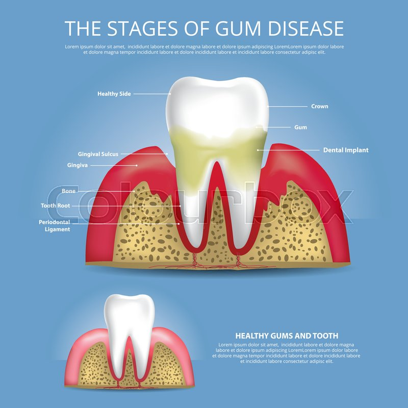 Human Teeth Stages Of Gum Disease Vector Illustration Stock Vector
