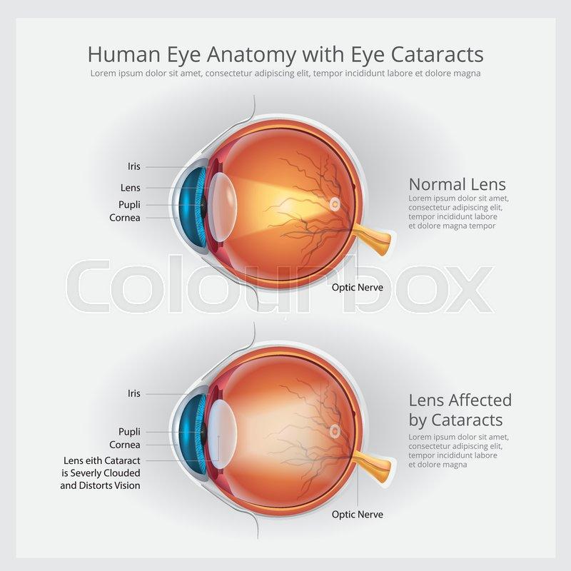 Cataracts Vision Disorder and Normal Eye Vision Anatomy Vector ...
