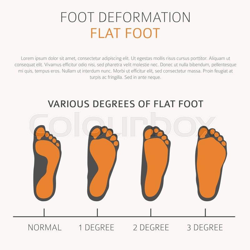 Flat foot; foot; infographic; icon; medicine; toe; foot deformation ...