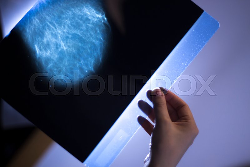 bryst screening