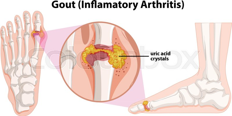 a human anatomy of gout illustration stock vector. Black Bedroom Furniture Sets. Home Design Ideas