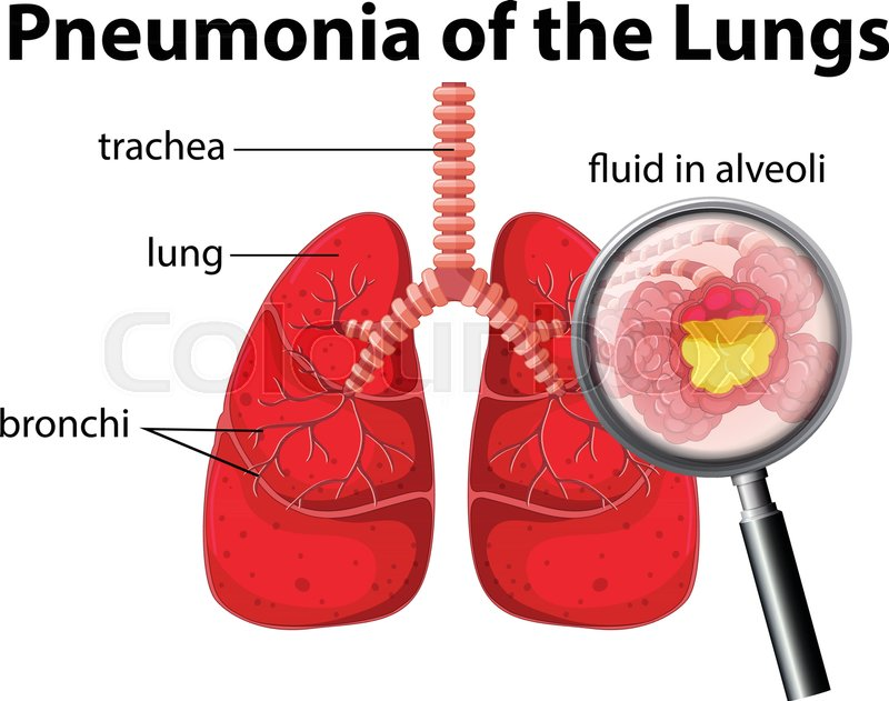 Pneumonia Of The Lungs Diagram Illustration Stock Vector Colourbox