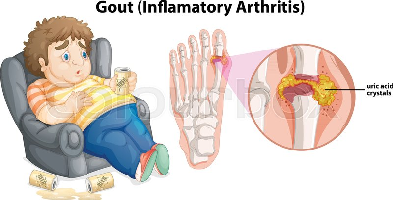 A Fat Man Gout On Foot Illustration Stock Vector Colourbox
