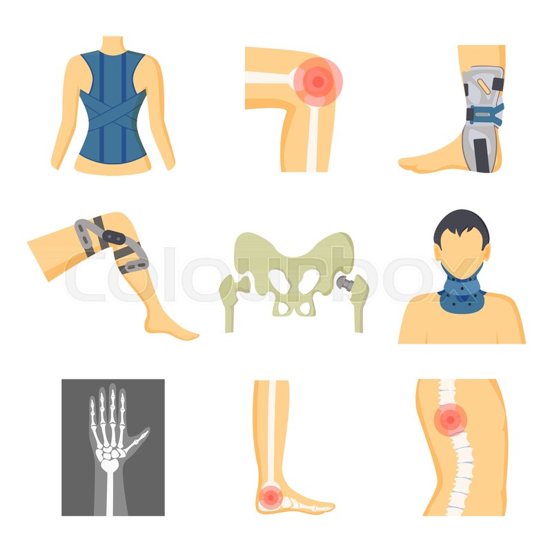 Orthopedics Fixing Tools And Pain In Bones Image Color Vector