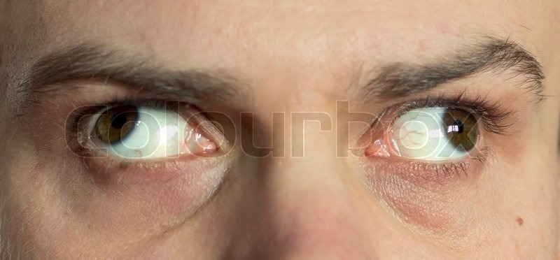 The Man S Eyes Close Up Look In Stock Photo Colourbox