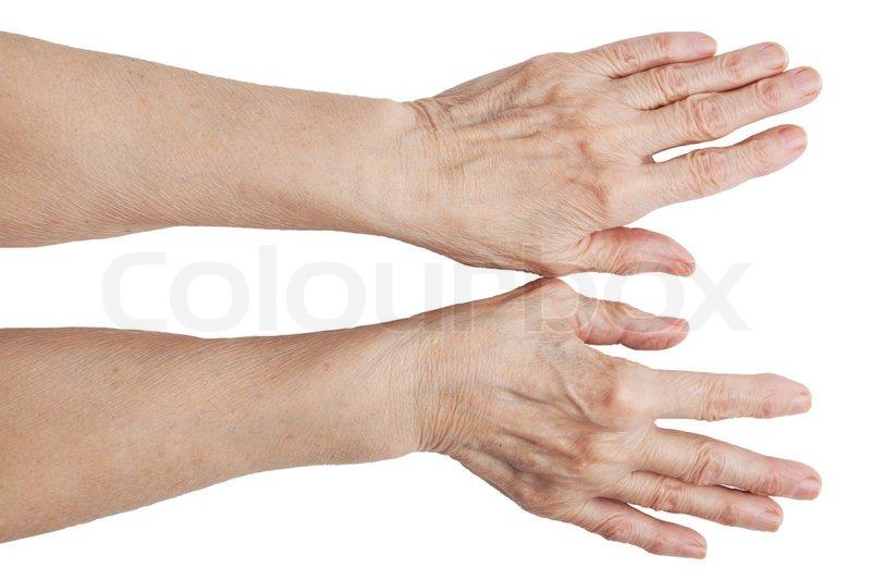 slidgigt hænder