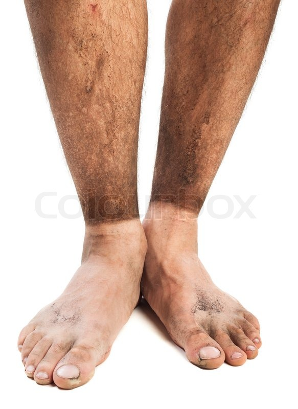 Dirty Feet Stock Photo Colourbox