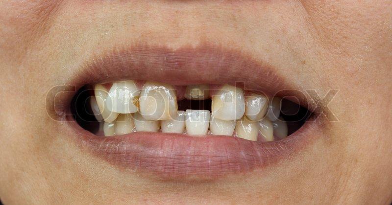 dårlige tænder