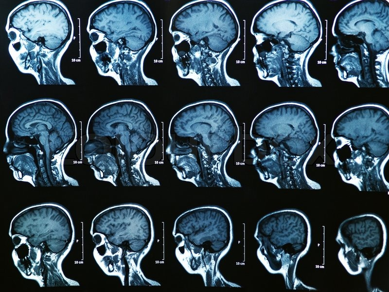 MRI Gehirn-Scan | Stockfoto | Colourbox