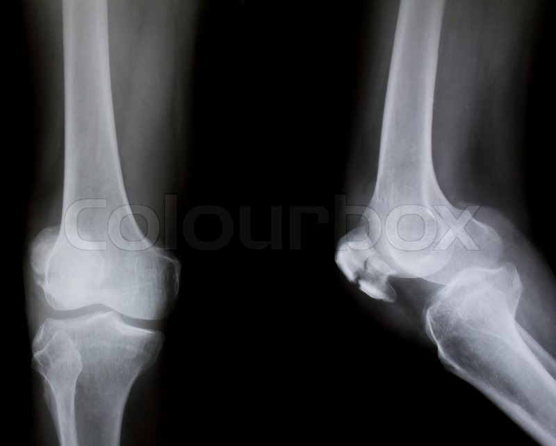 X-ray of both human knee broken knee | Stock Photo | Colourbox X Rays Of Broken Knees