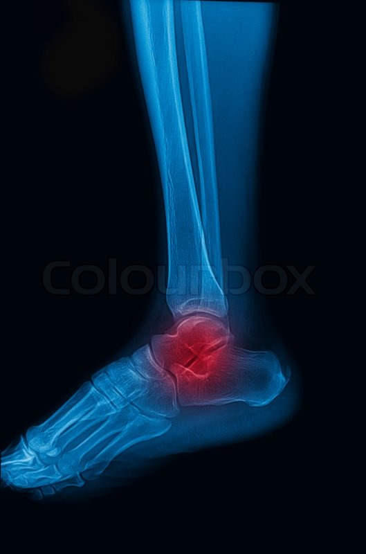Ankle and foot x-rays image lateral | Stock Photo | Colourbox