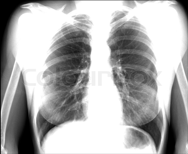 A chest x-ray image for a medical diagnosis, stock photo