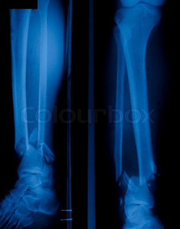 X Ray Film Of Bone Leg Fracture Stock Photo Colourbox