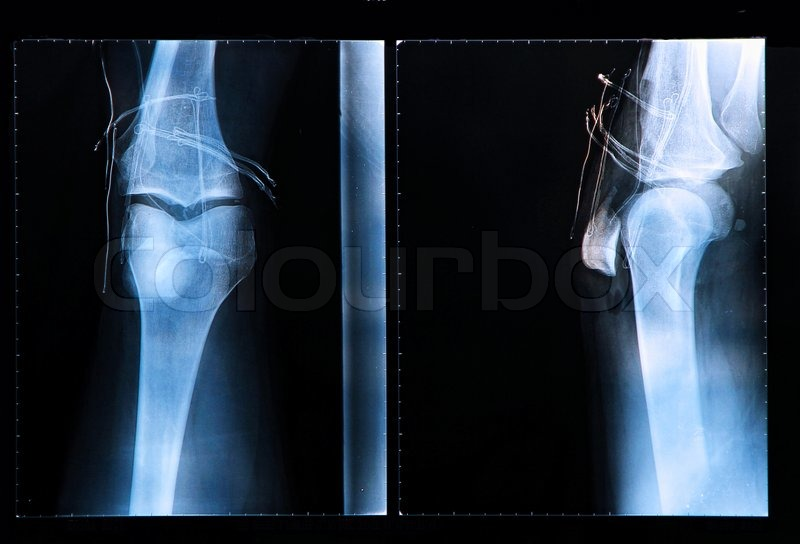 Knee X-ray after surgery for Anterior cruciate ligament injury, stock photo
