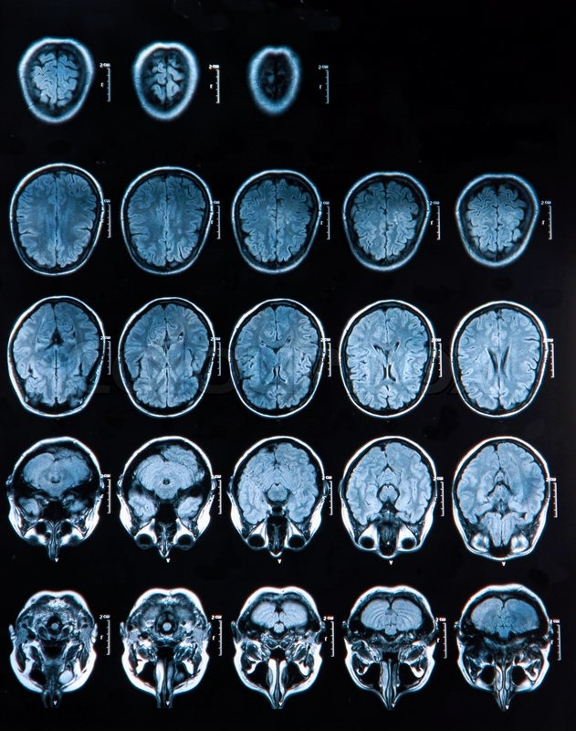 Mri scan brain best brain 2018 mri scan of the brain from lab a at time ccuart Image collections
