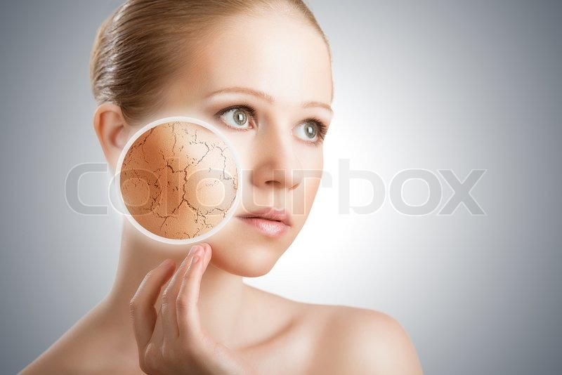 Concept of cosmetic effects, treatment and skin care. face of young woman with dry skin, stock photo