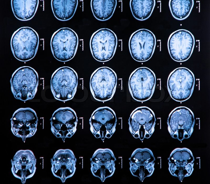 MRI Gehirn -Scan | Stockfoto | Colourbox