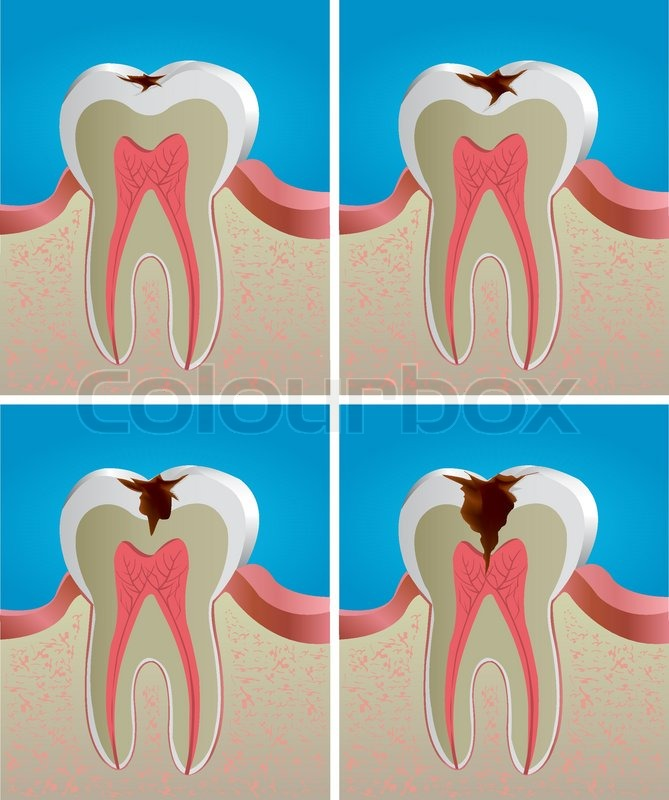 Vector Tooth decay | Stock vector | Colourbox