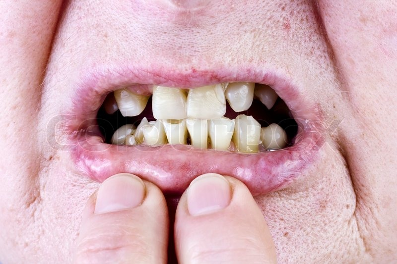 Yellow tongue Causes, treatments, and when to see a doctor