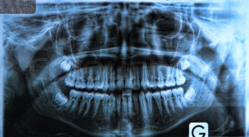 Panorama dental x -ray | Stockfoto | Colourbox