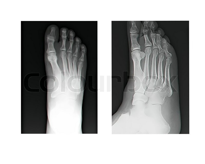 Human Leg Bone X Rays Stock Photo Colourbox