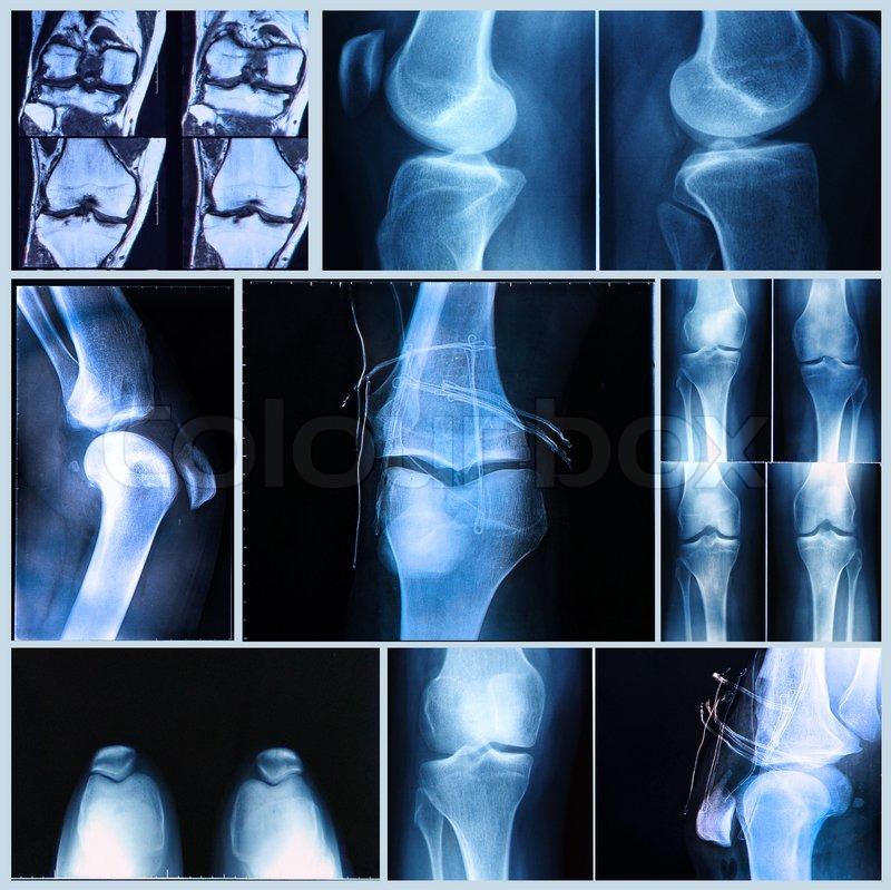 mr skanning af knæ