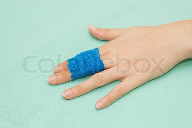 brækket lillefinger symptomer
