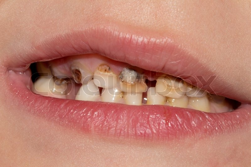 Dental medicine and healthcare - human patient open mouth showing ...