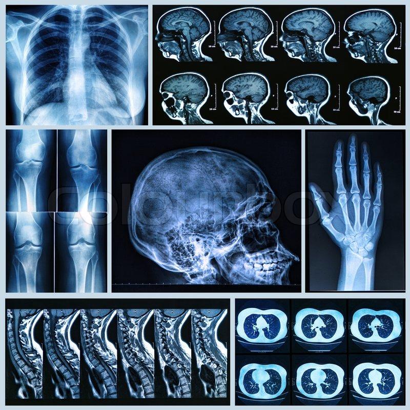 Röntgendiagnostik von menschlichen Knochen | Stockfoto | Colourbox