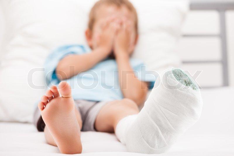 Frisk Lille barn dreng med gips forbinding på | Stock foto | Colourbox VR-73