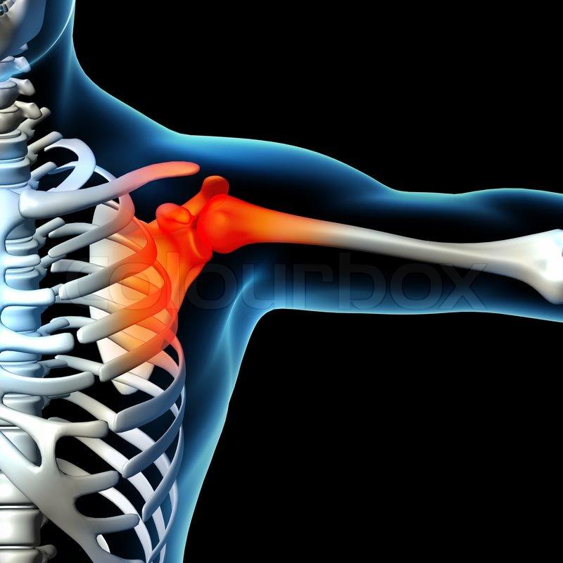 Menschliche Schulterschmerzen mit der Anatomie der ein Skelett ...