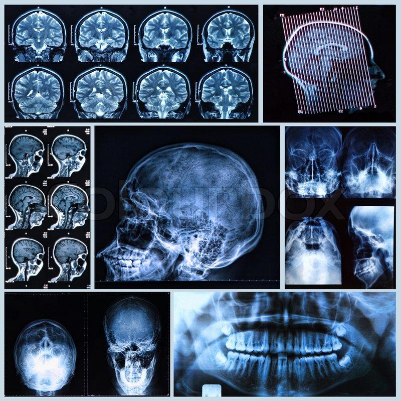 Kopf und Hals Anatomie | Stockfoto | Colourbox