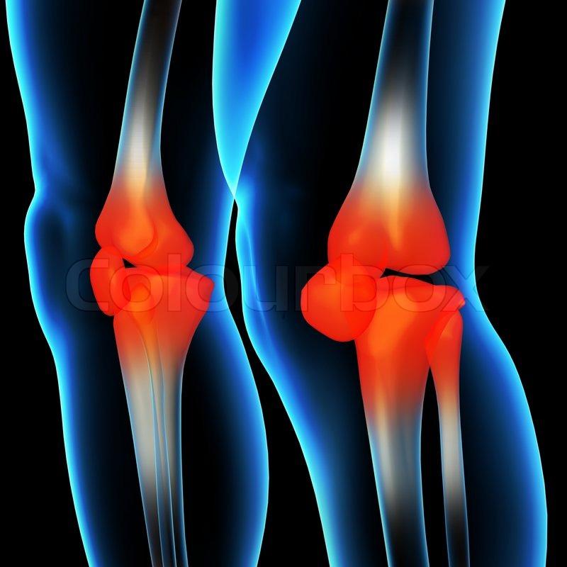 Menschliche Knieschmerzen mit der Anatomie ein Skelett Bein ...