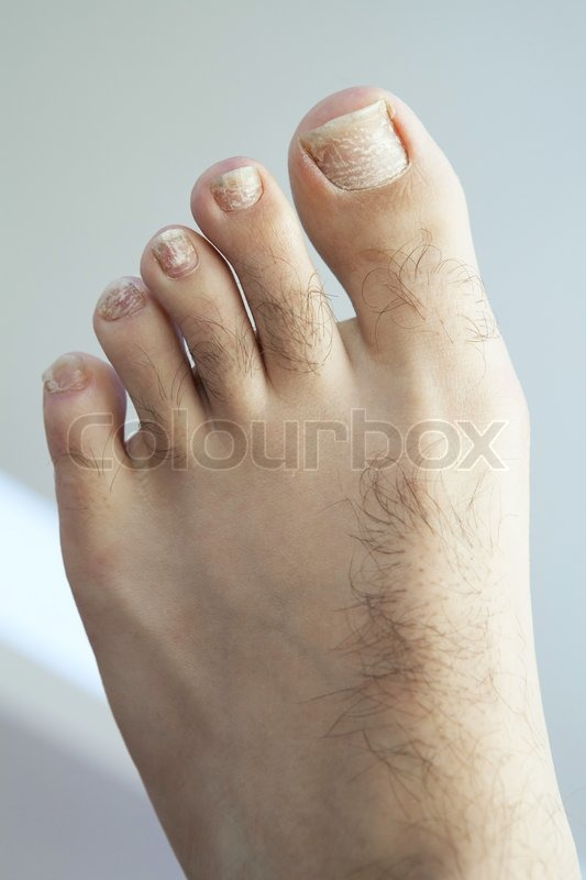 What Is Casing My Toenail To Crack Horizontally - Doctor ...