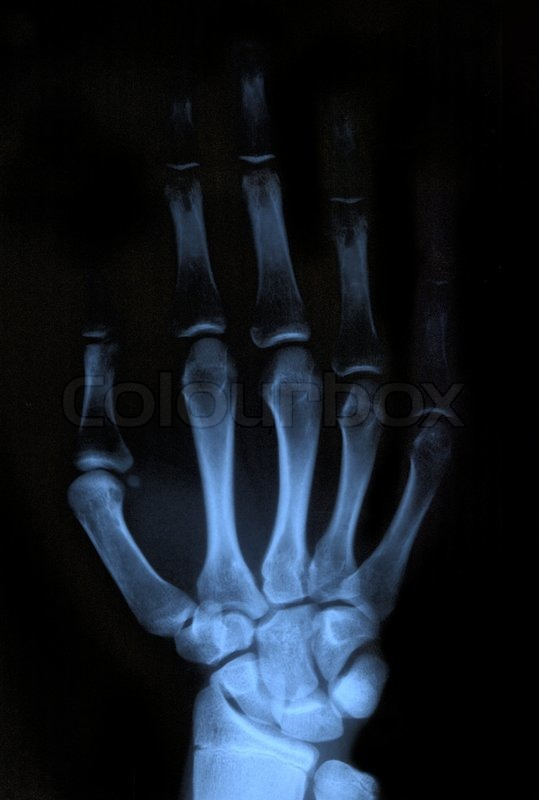 Scan Of Human Hand Xray Image Medical Background Stock Photo