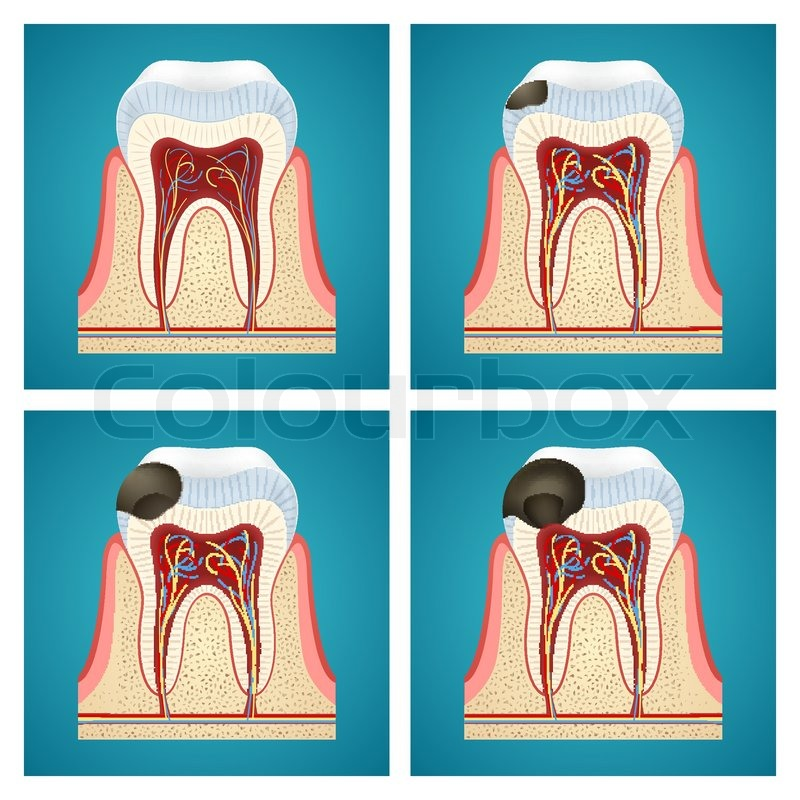 Stufen Fortschritt Karies auf menschliche Zähne   Vektorgrafik ...